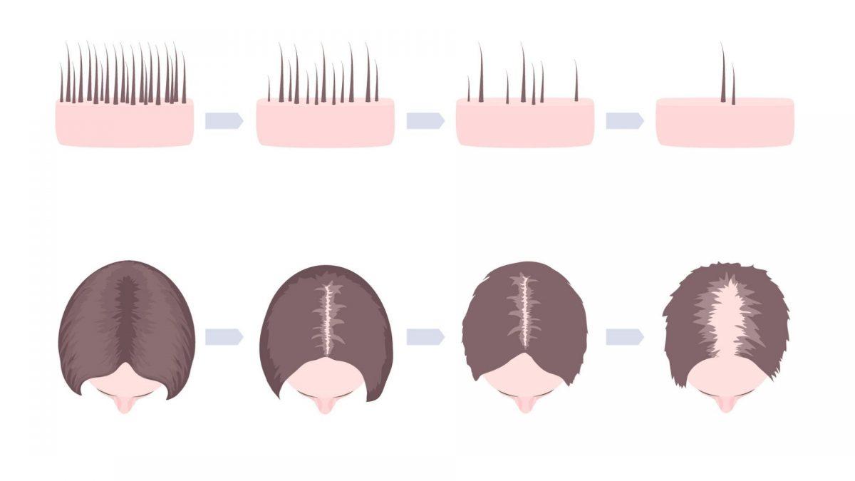 Haarausfall bei jungen Frauen, die Ursachen