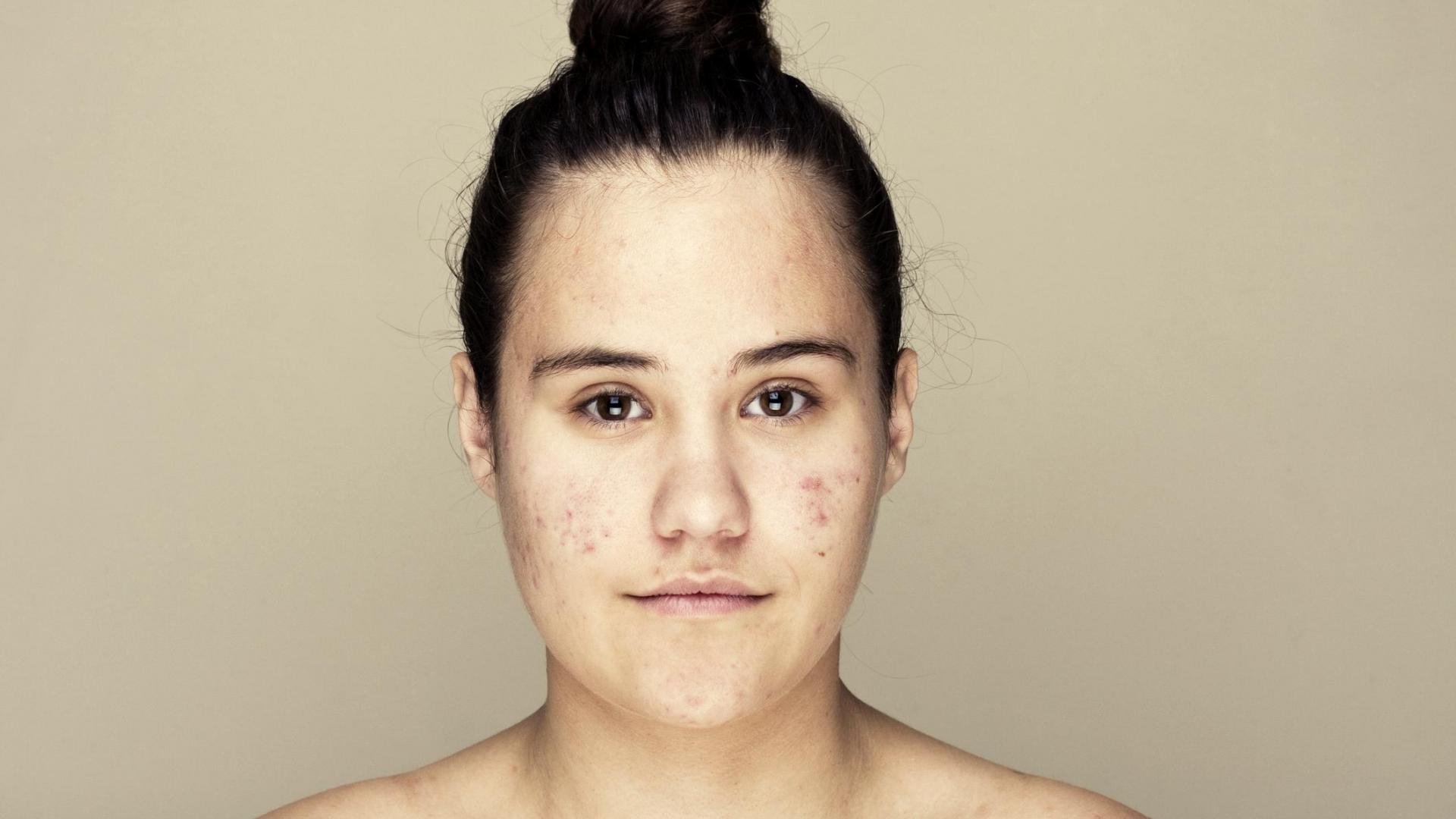 mädchen kein make up schminke haut pickel