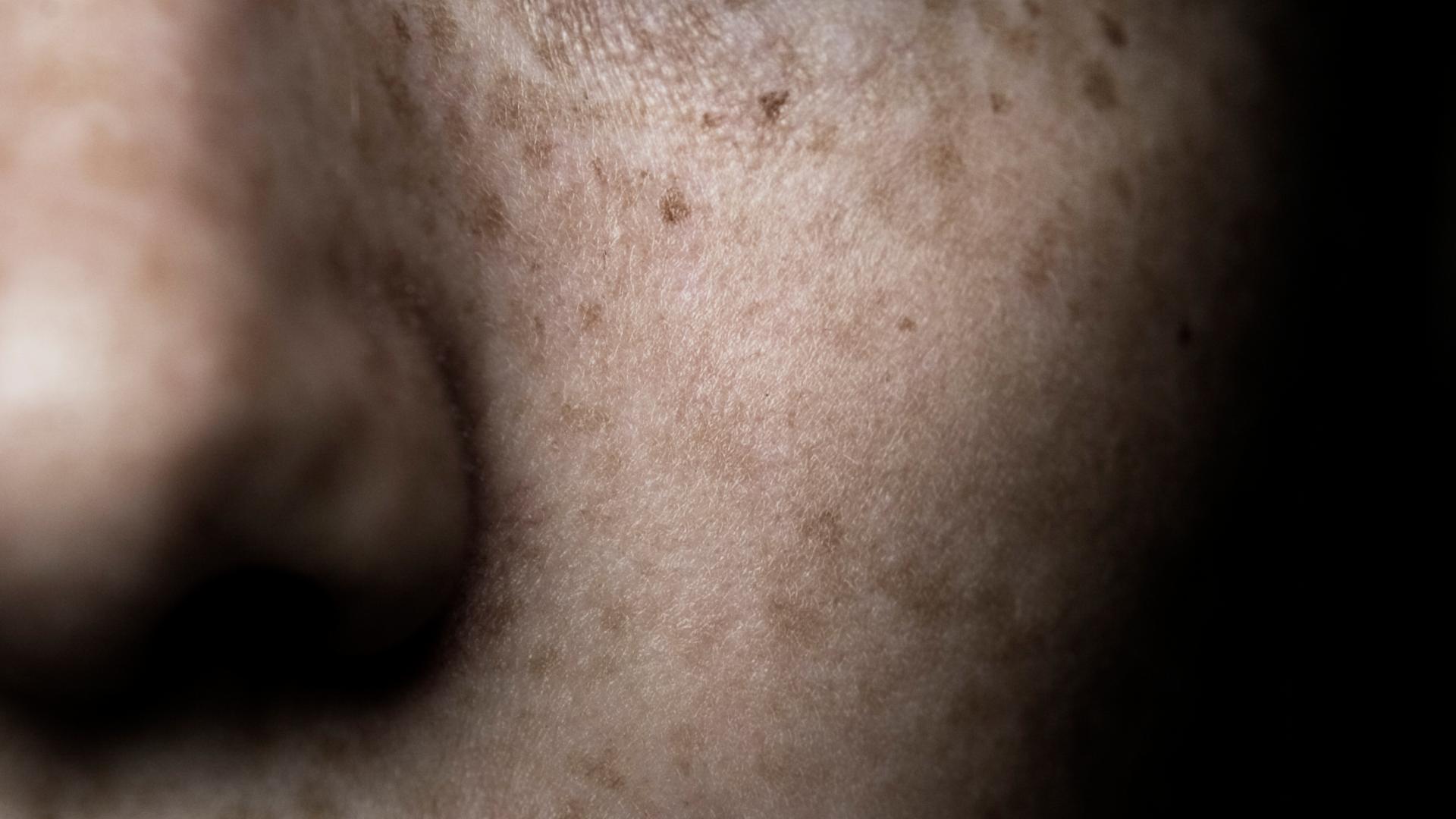 Haut Sommersprossen Frau Gesicht Face