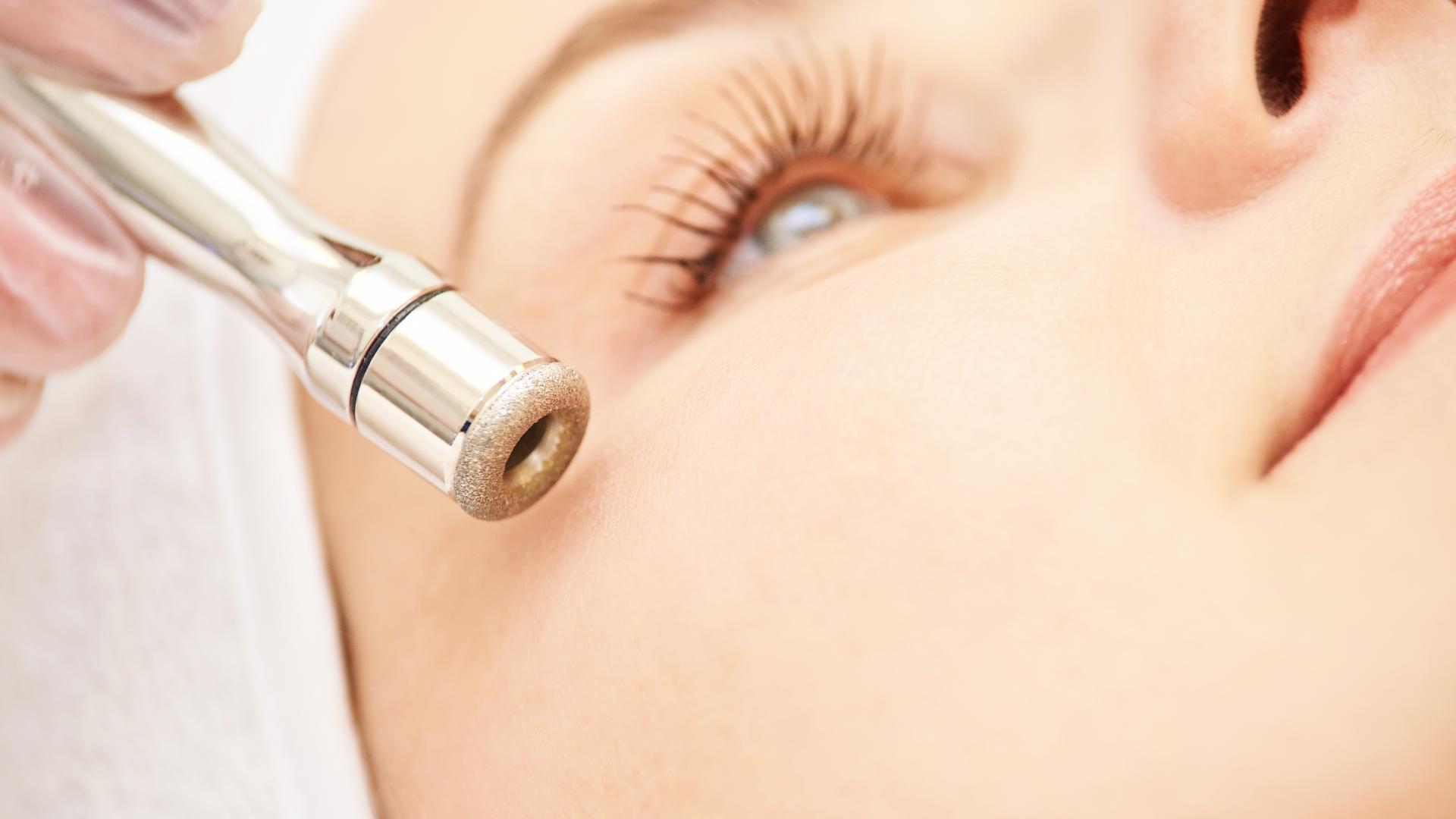 Dermabrasion kann die oberste Hautschicht abtragen und so die Pigmentflecken entfernen