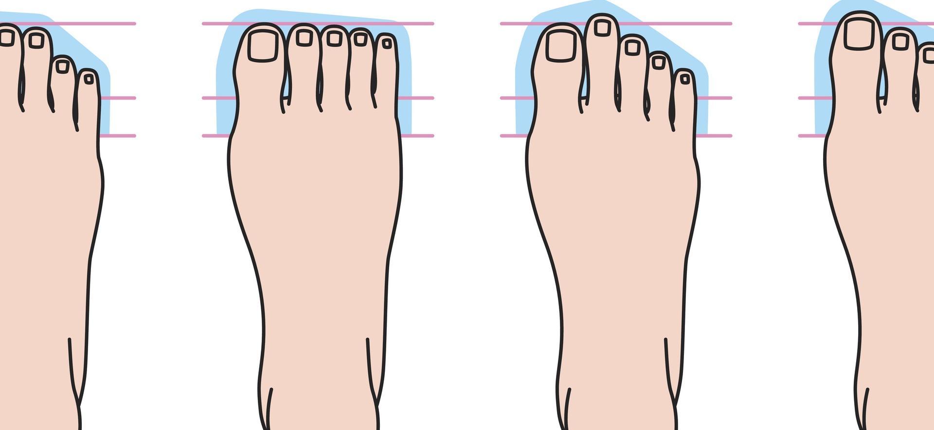 Füße Typen Formen