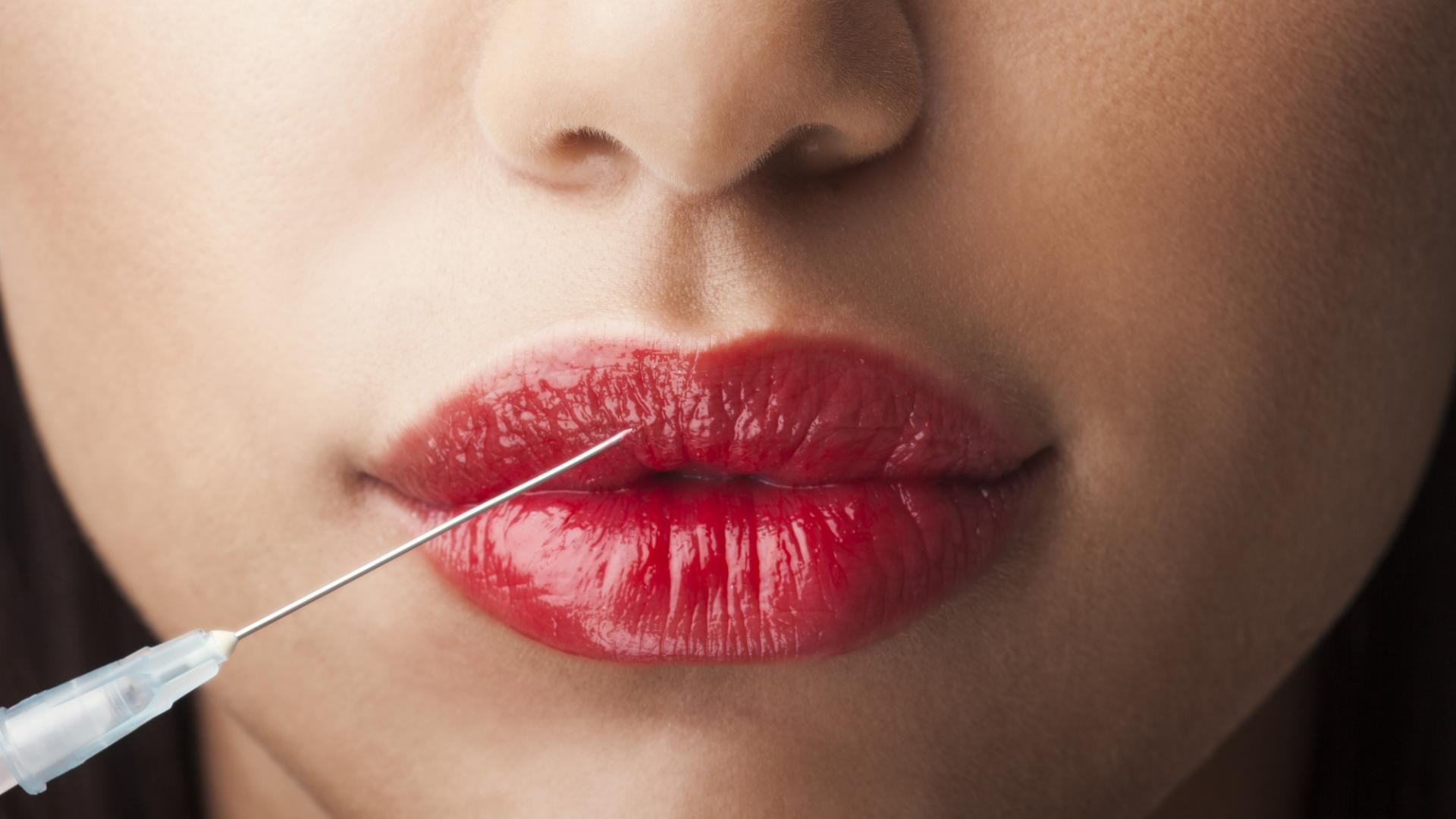 Botoxbehandlung Lippen aufspritzen