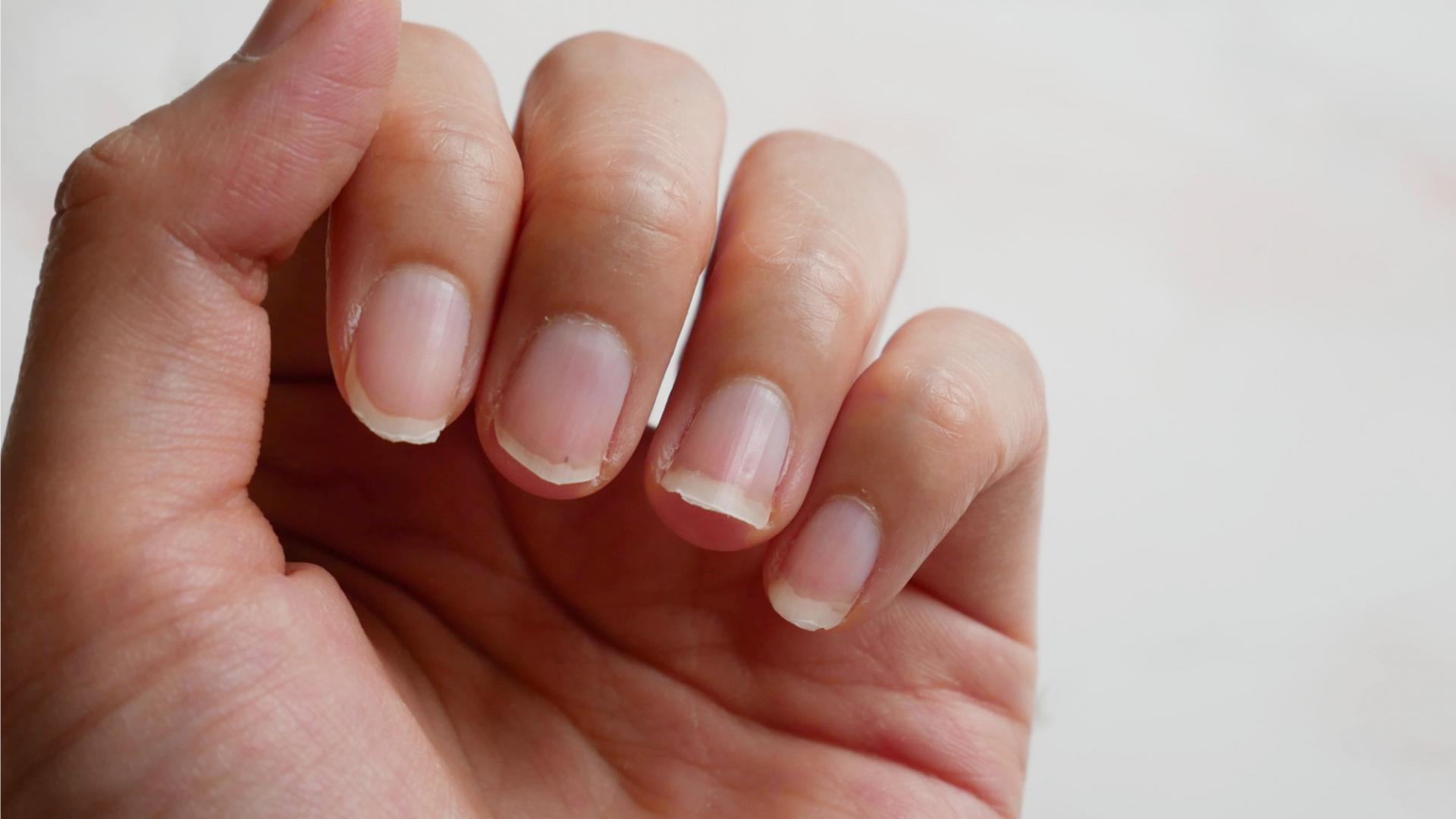 Fingernägel & Krankheiten