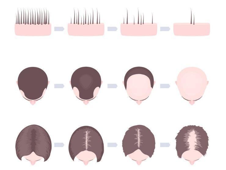 Haarausfall bei jungen Frauen und Männern
