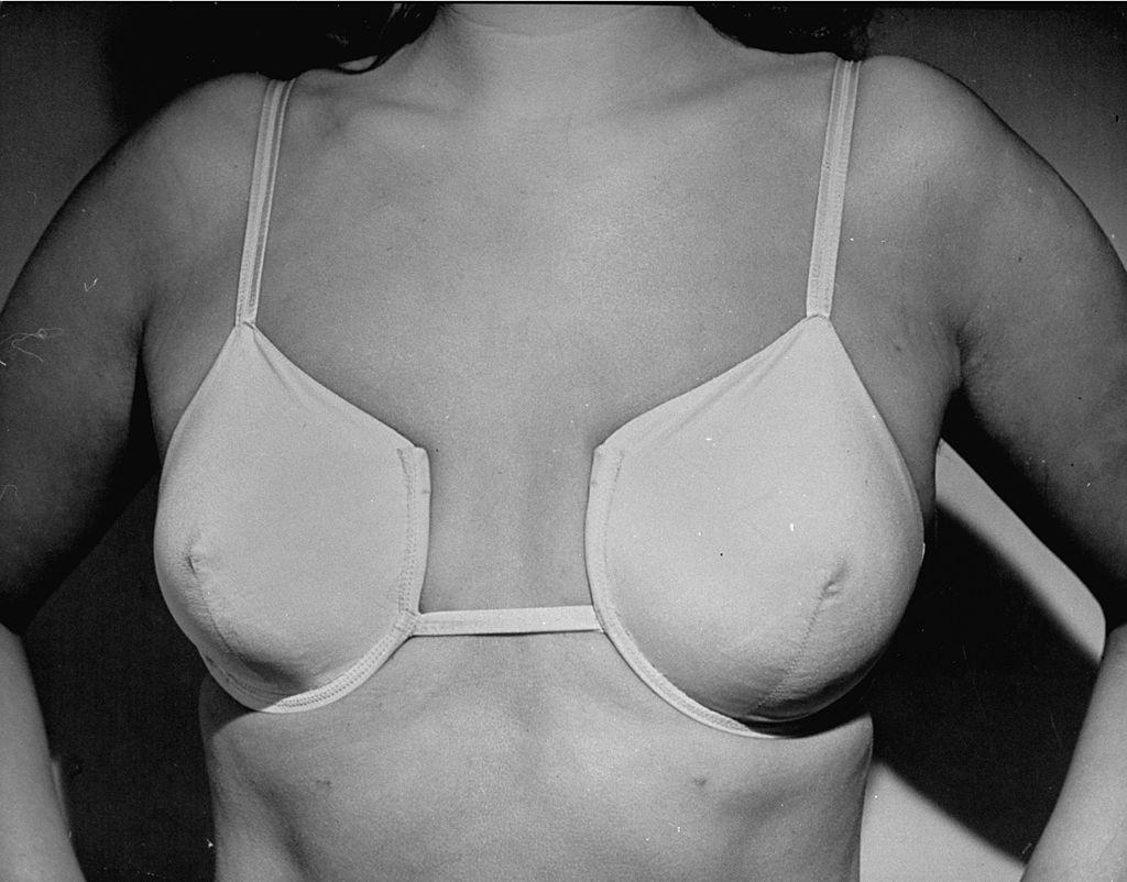 Groß brüste unterschiedlich Asymmetrische Brüste