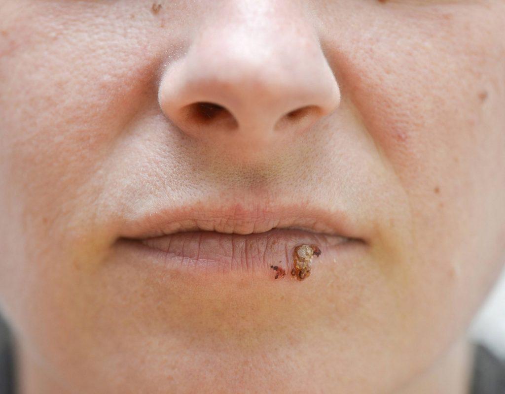 herpes frau mund