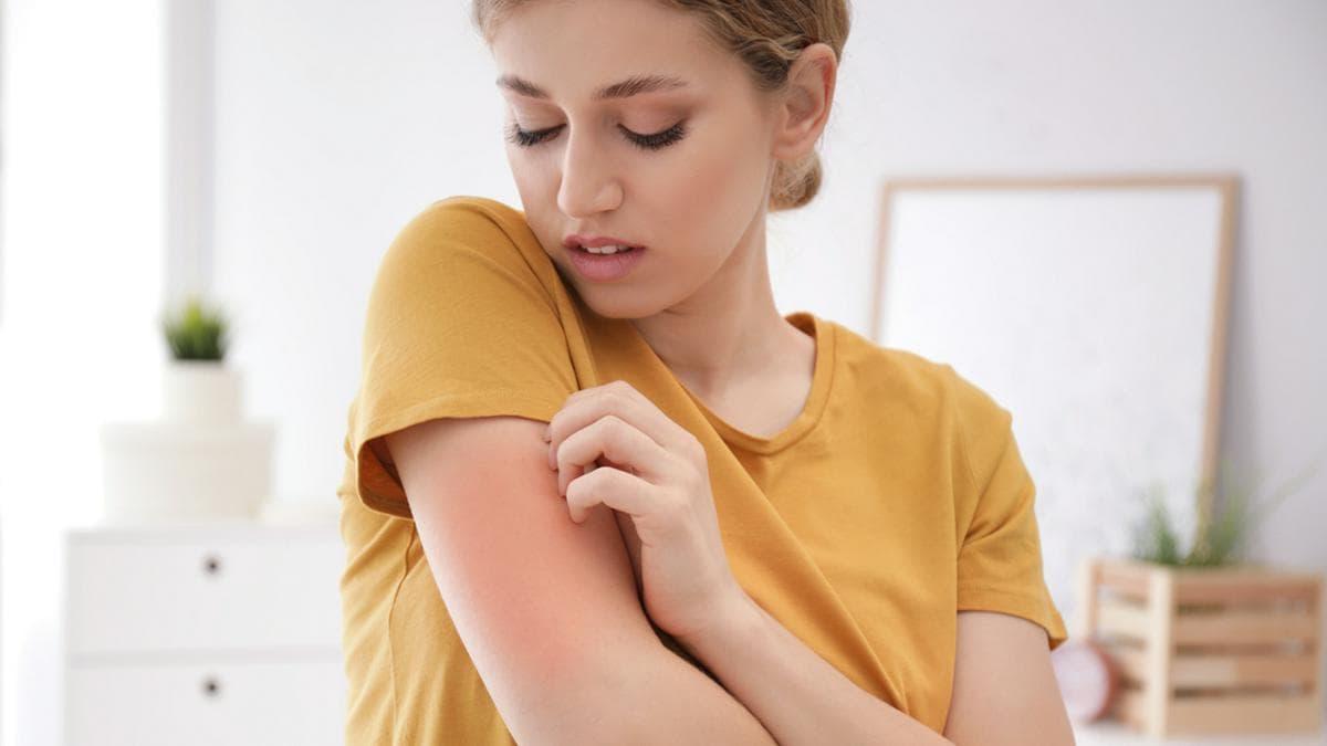 Juckende Haut gehört zum Symptombild von Neurodermitis.. © New Africa/Shutterstock.com