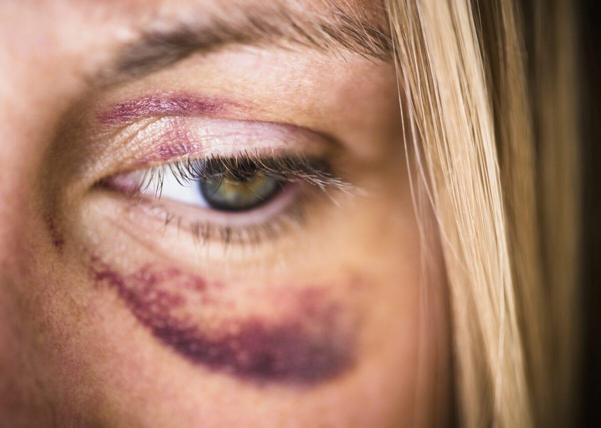 Frau mit blauem Auge