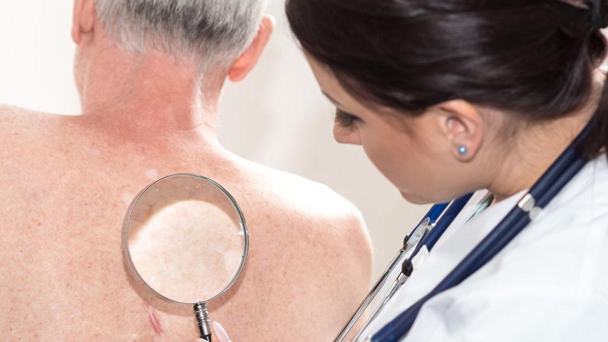 Bei Verdacht auf Gürtelrose sollte man schnellstmöglich einen Arzt aufsuchen.. © thodonal88/Shutterstock.com