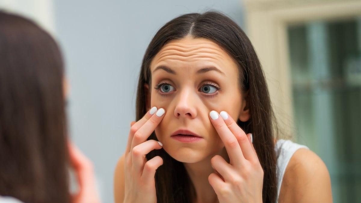 Unser Lebensstil kann für Augenringe verantwortlich sein.. © Mladen Mitrinovic/Shutterstock.com