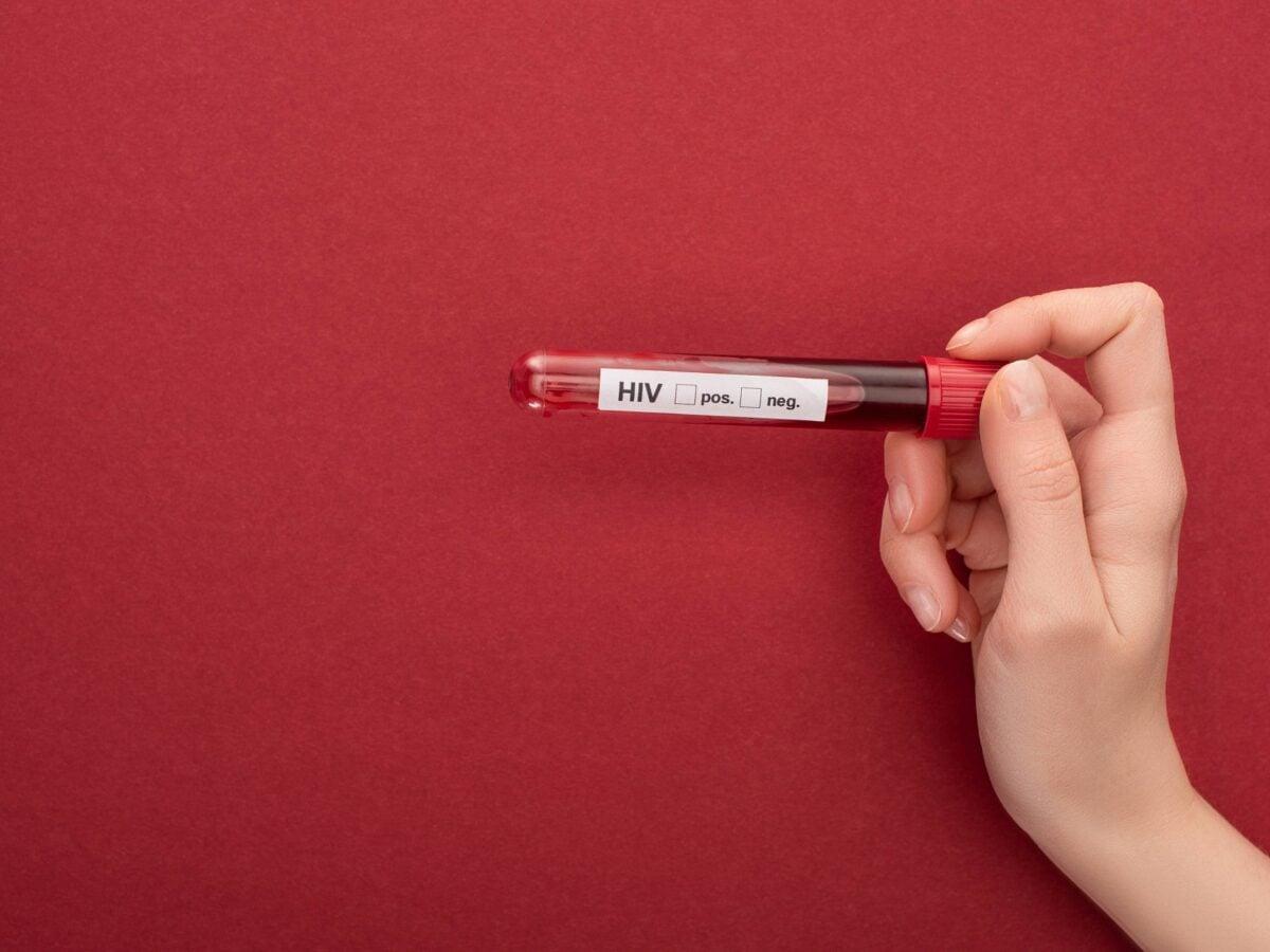 Wann HIV-test